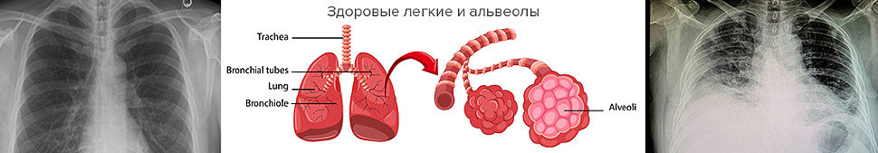 Пульсоксиметр – помощник в борьбе с коронавирусом